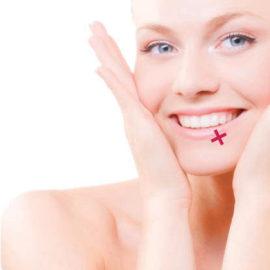 Гиалуроновый филлер для мезотерапии HyalStyle Smile Австрия